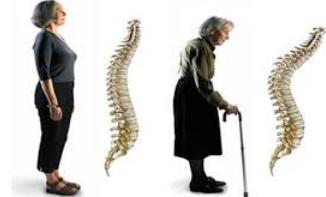 Kemik Eerimesi Nasıl Önlenir, Kemik Eerimesini Önlemek İçin Neler Yapılmalı?